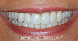 After Invisalign & Teeth Whitening