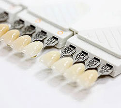 teeth_porcelain_veneers_colour